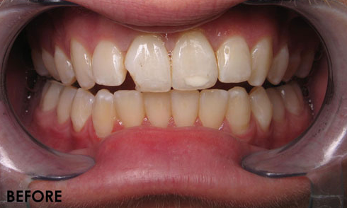 Cosmetic-Bonding-3-Before-Image