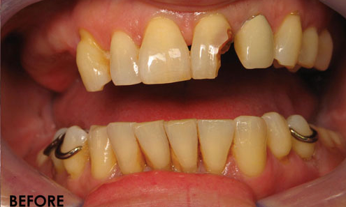 Cosmetic-Bonding-4-Before-Image