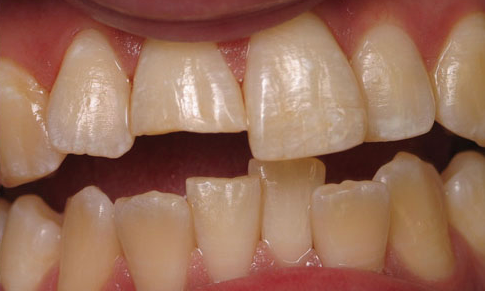 Cosmetic-Bonding-5-Before-Image